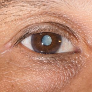 Mack Eye Center patient's eye before bladeless cataract surgery