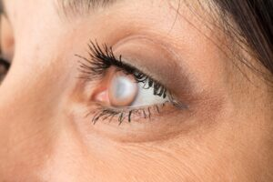 Cataract surgery in Hoffman Estates, IL