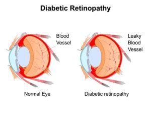 Diabetic retinopathy in Hoffman Estates, IL