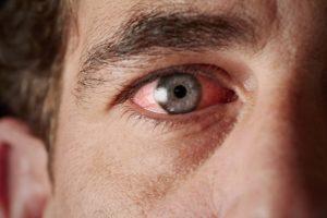 Dry eye treatment options